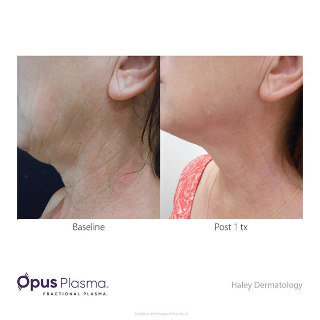 Opus-Before-After-Web-10