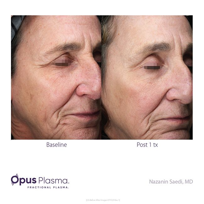 Opus-Before-After-Web-12