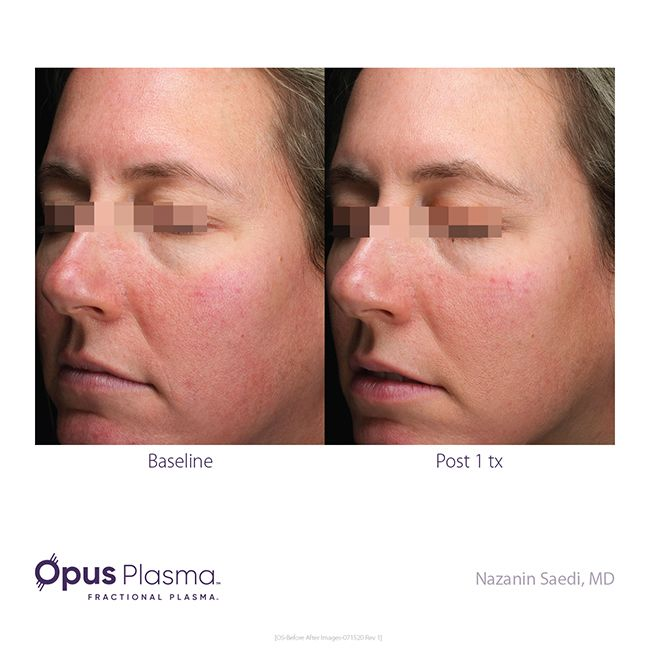 Opus-Before-After-Web-13