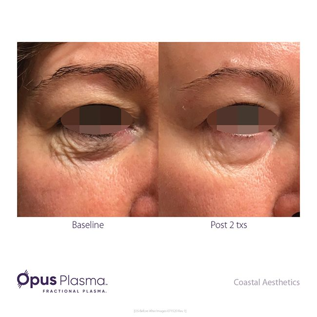Opus-Before-After-Web-14