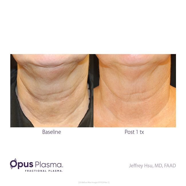 Opus-Before-After-Web-2