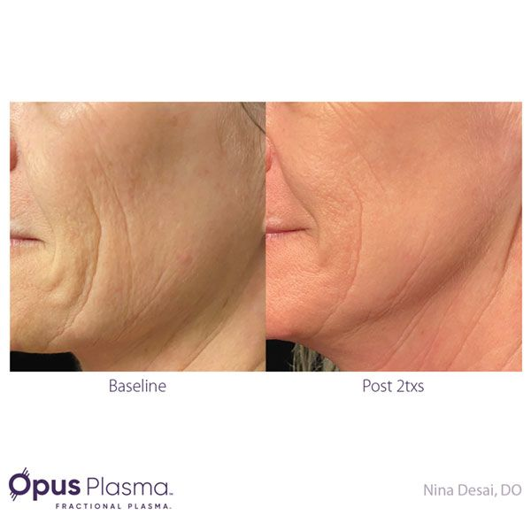 Opus-Before-and-After-B2B-082820-1