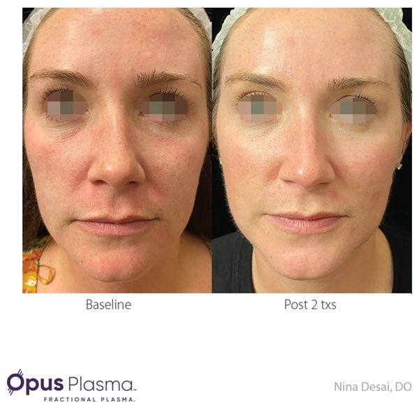 Opus-Before-and-After-B2B-082820-2