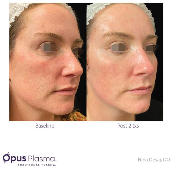 Opus-Before-and-After-B2B-082820-3