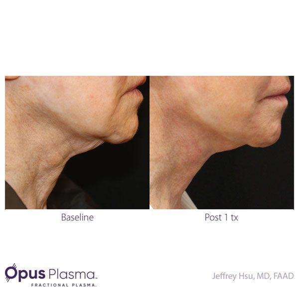 Opus-Before-and-After-B2B-082820-8