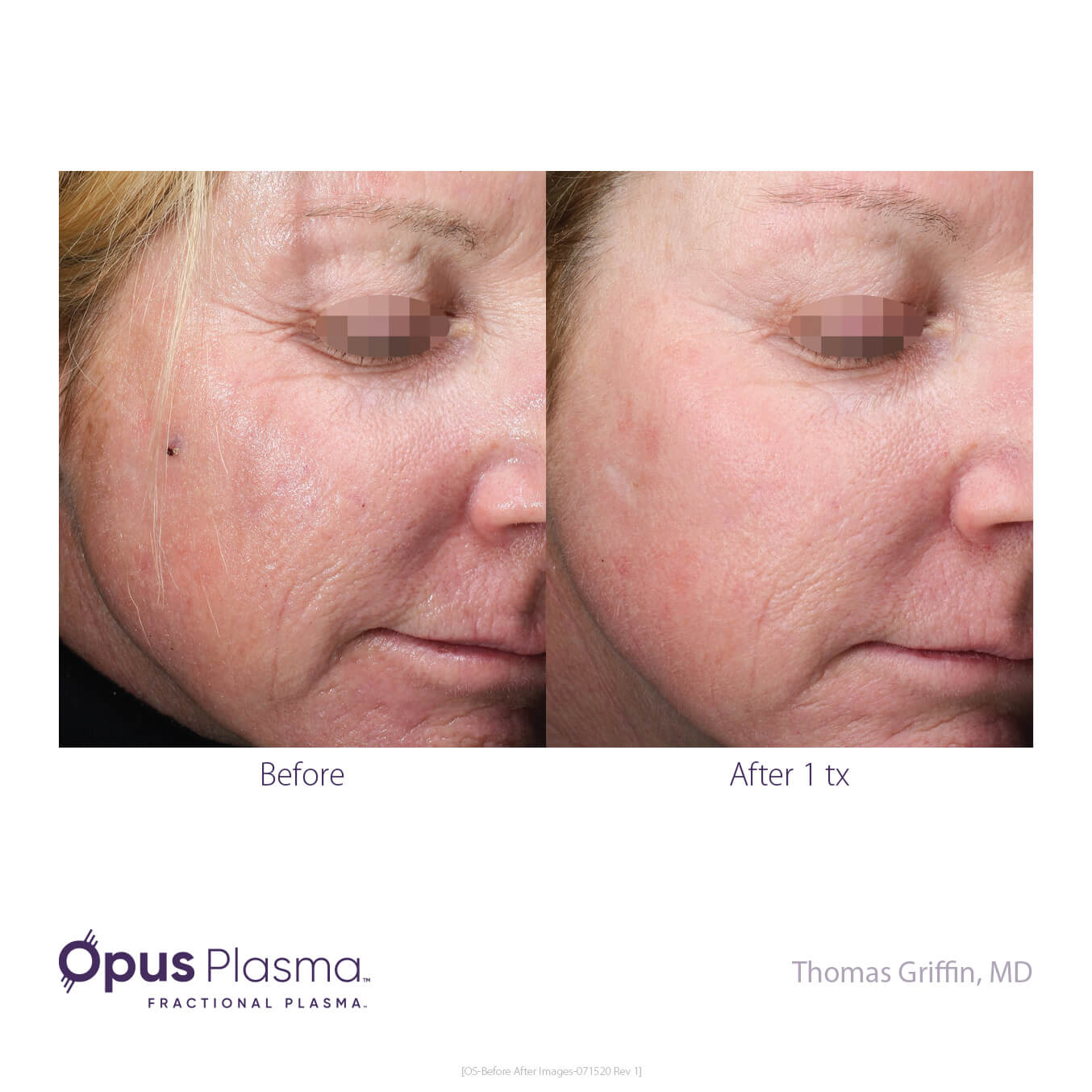 Opus-Before_and_After-B2C-11