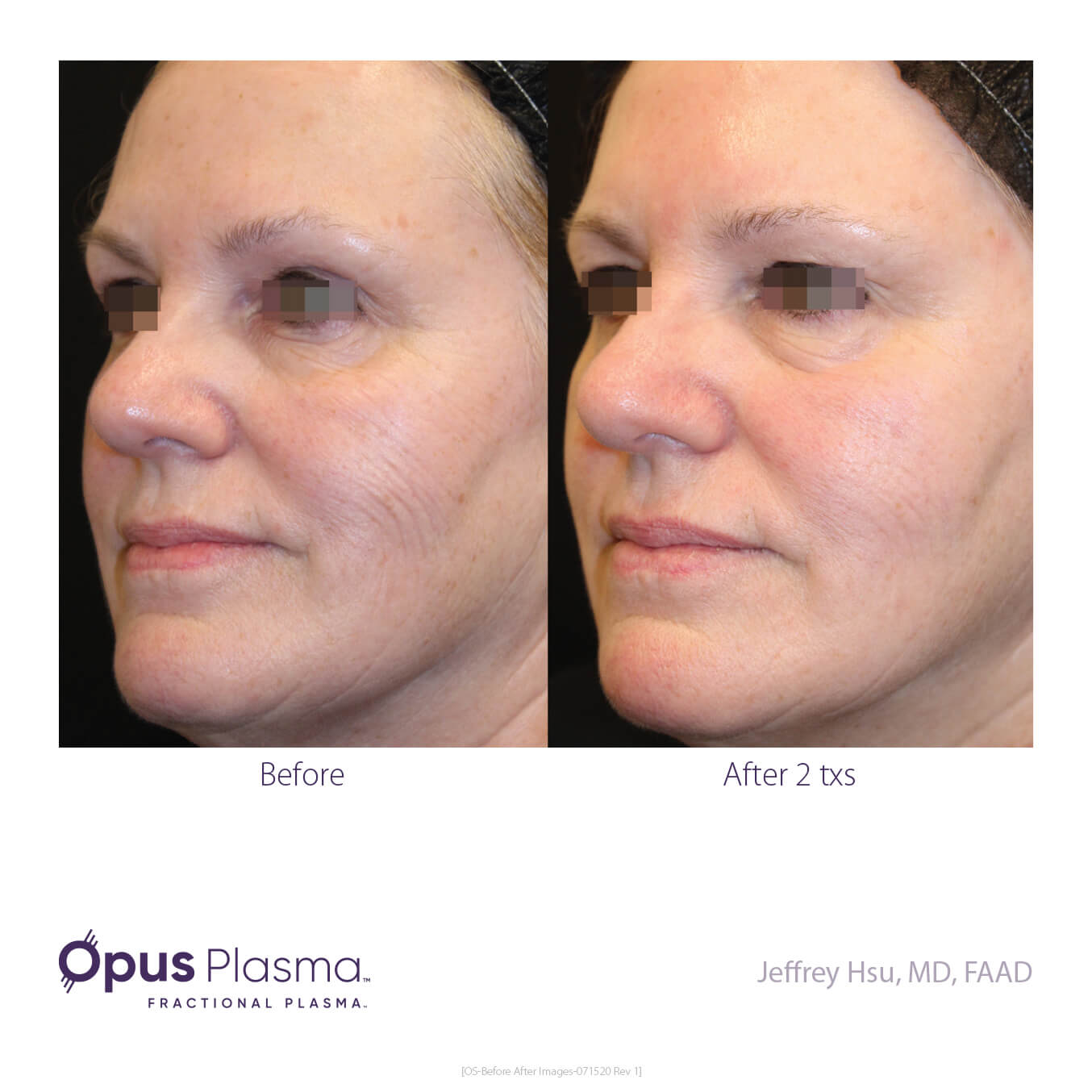 Opus-Before_and_After-B2C-4
