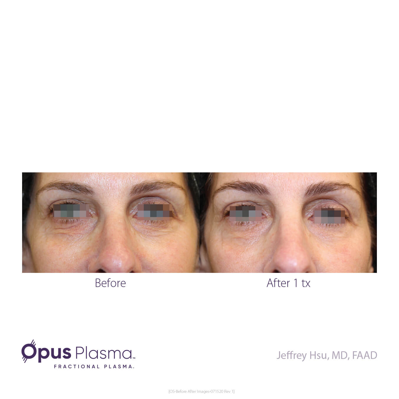 Opus-Before_and_After-B2C-6