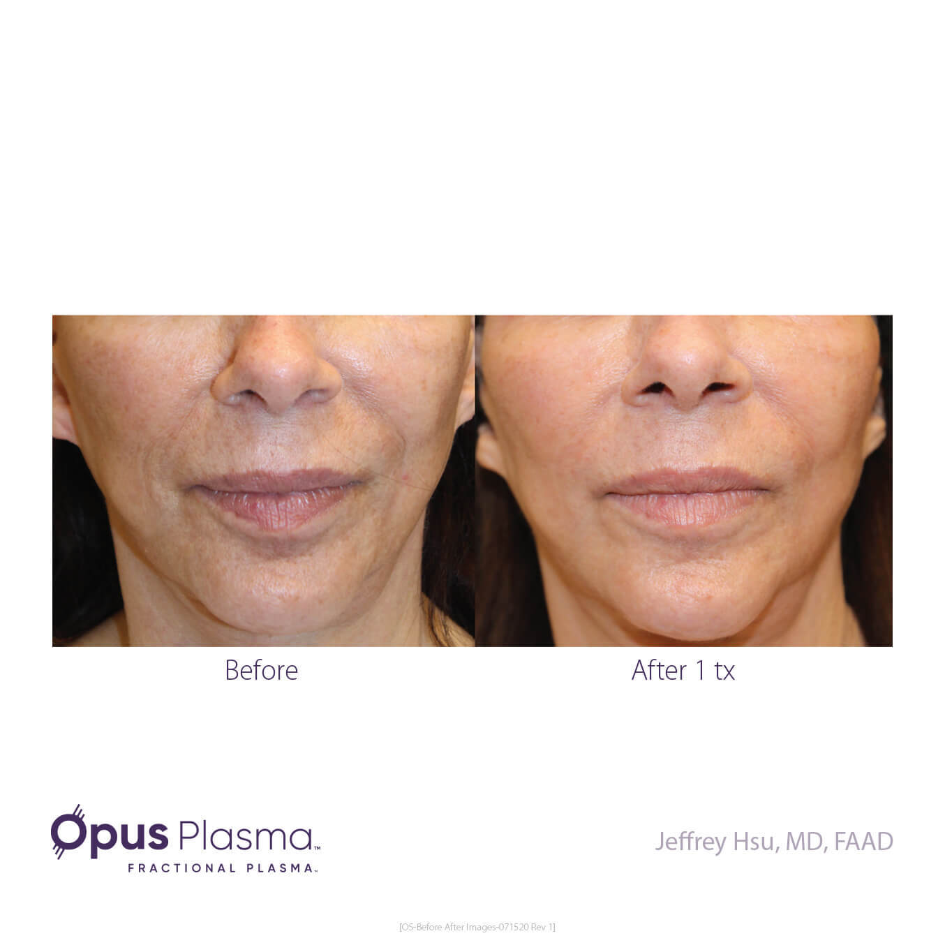 Opus-Before_and_After-B2C-7
