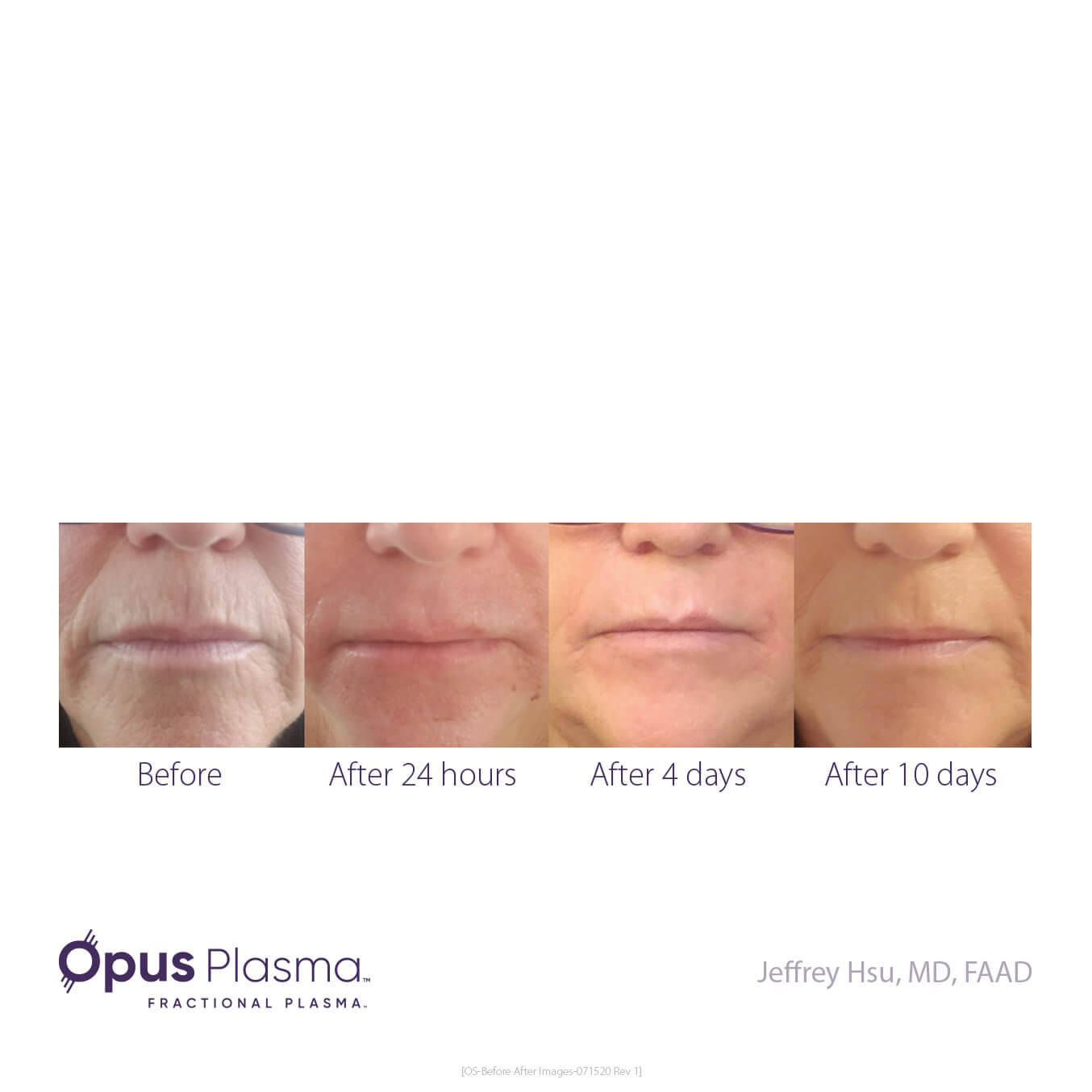Opus-Before_and_After-B2C-8