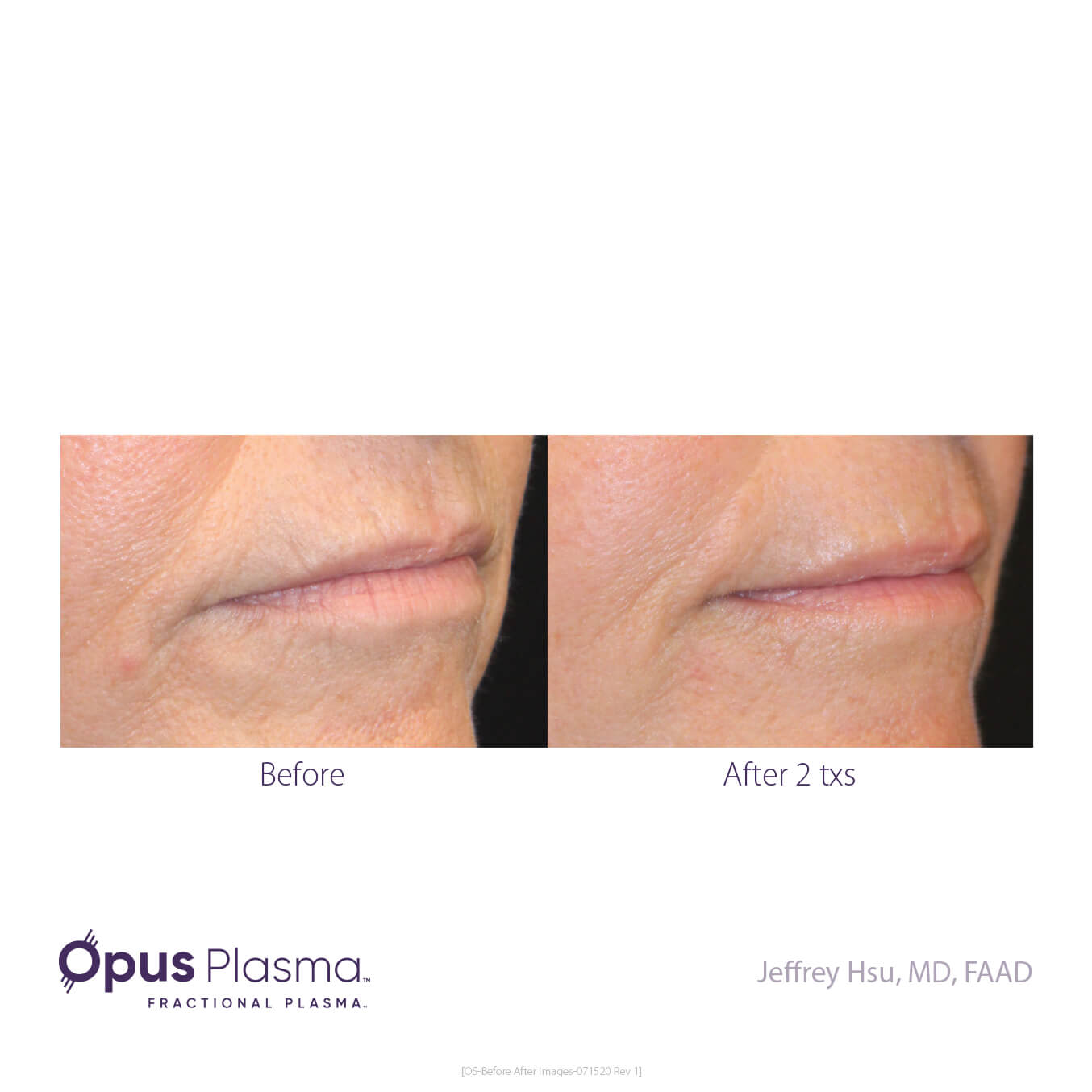 Opus-Before_and_After-B2C-9